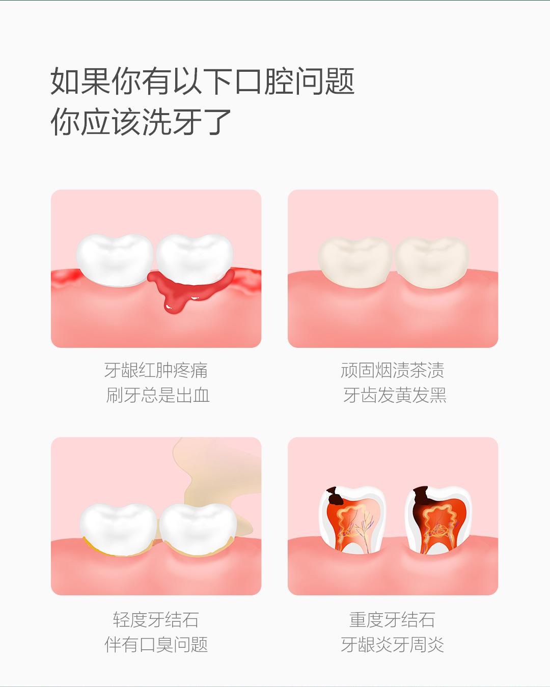 product_奇妙_贝医生超声波洁牙仪